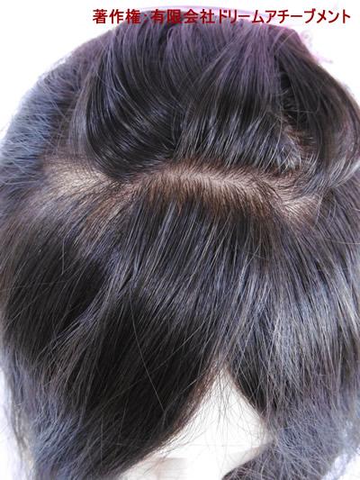 自分の髪で作る医療用かつら